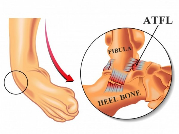 Ankle Sprain Rory Mcilroy